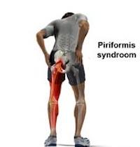 Piriformis syndroom