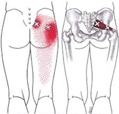 piriformis syndroom uitstraling