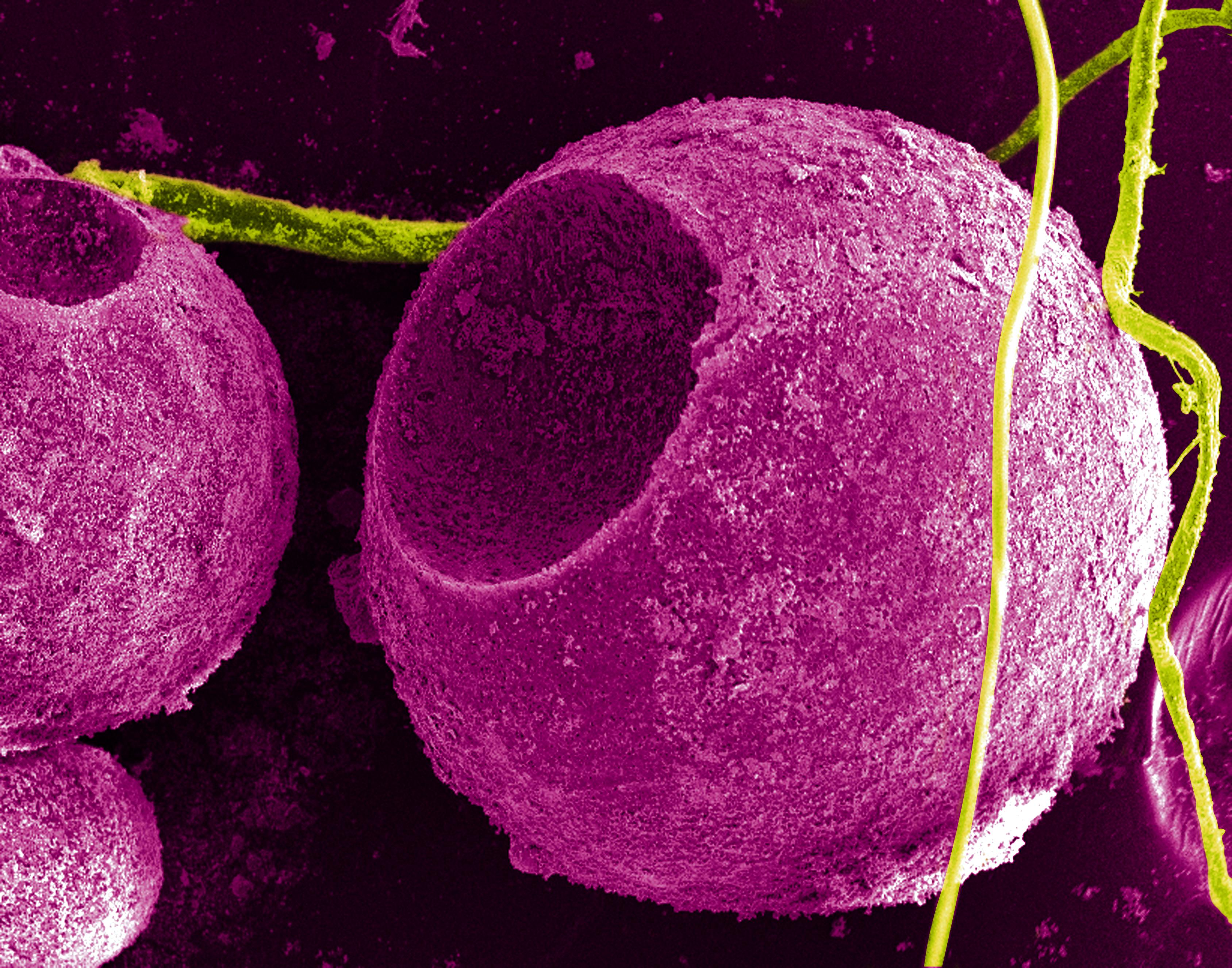 Два лица нанотехнологий